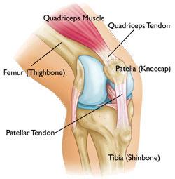jumpers-knee
